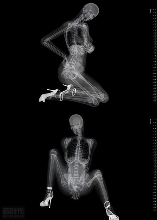 x-ray-beauty